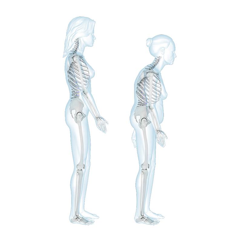 Giornata dell'Osteoporosi